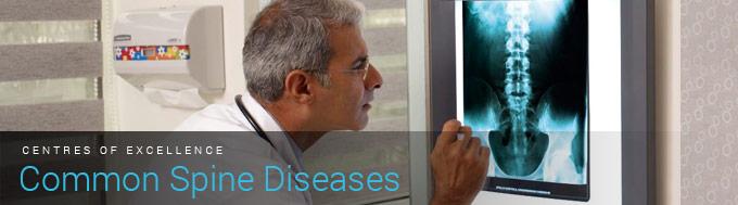 Common Spine Diseases