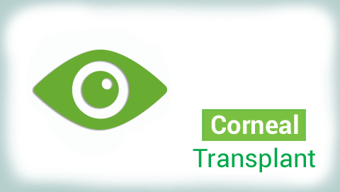 Corneal Transplantation Surgery in India