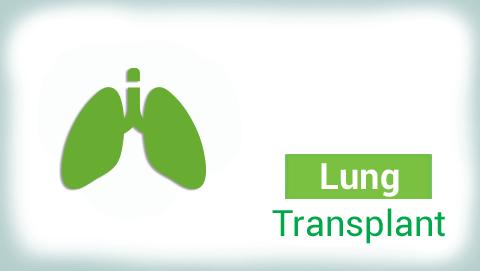 Best Hospital for Lung Transplant
