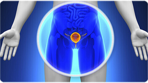 Prostate Cancer Treatment in India at Apollo Hospitals